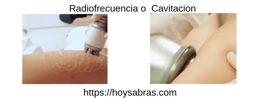 diferencias entre radiofrecuencia o cavitacion