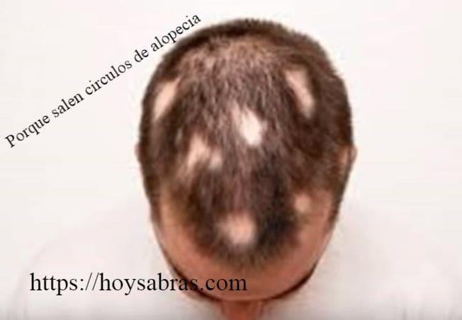 alopecia en redondeles