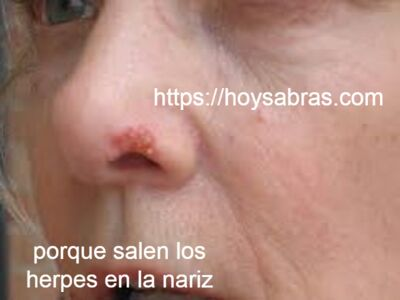 porque sale herpes en la cara